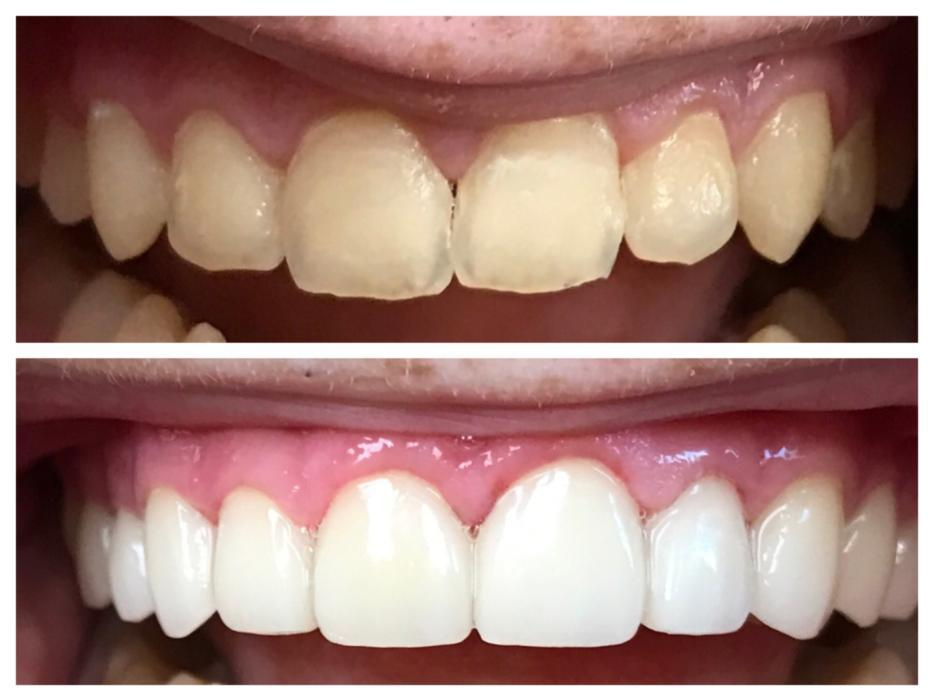 Porcelain veneers in west caldwell cosmetic dentistry porcelain veneers being happy with the appearance of your smile is important your smile is a part of your first impression on the world when you do not solutioingenieria Image collections