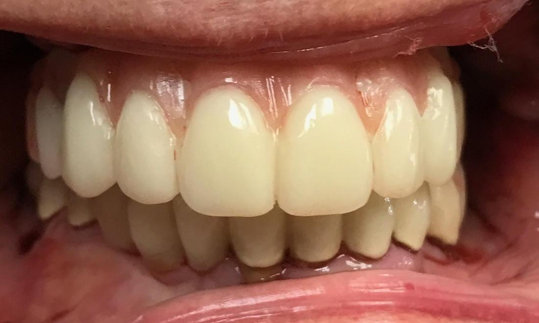 Dental Implant Full Mouth Reconstruction - Phase 1