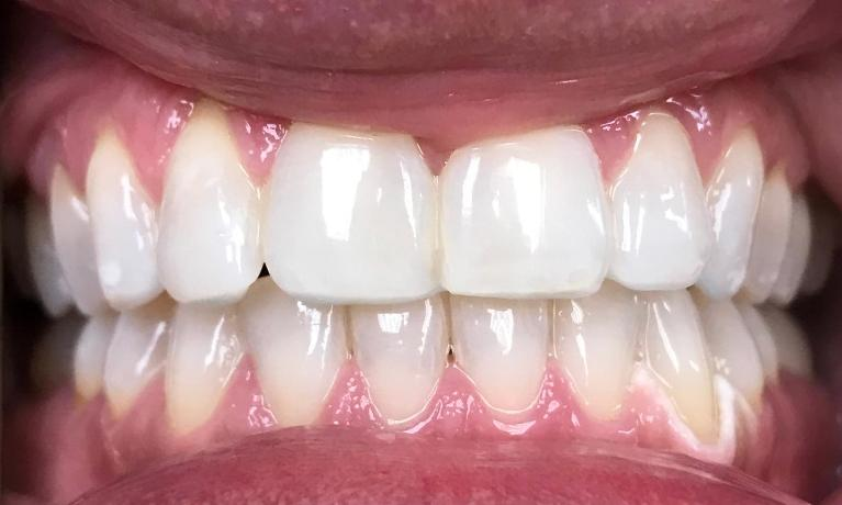 GLO-Professional-Teeth-Whitening-After-Image