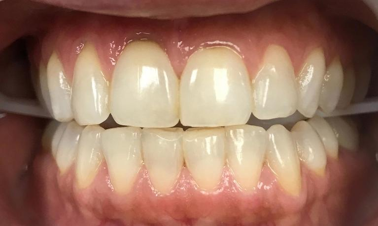 GLO-Professional-Teeth-Whitening-Before-Image