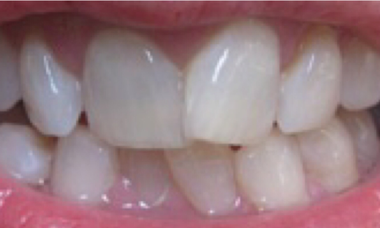 Invisalign-Before-Image